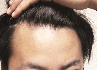 ED・男性型脱毛症